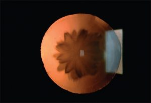 Retroillumination view of the left eye's double rosette cataract
